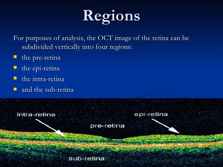Regions <ul><li>For purposes of analysis, the OCT image of the retina can be subdivided vertically into four regions: </li...