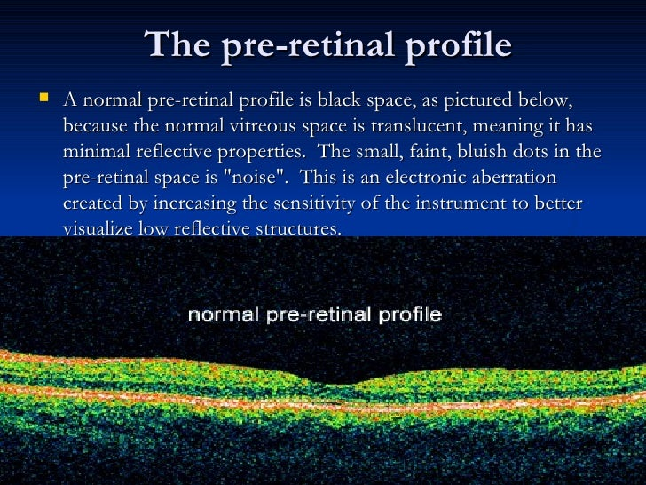The pre-retinal profile <ul><li>A normal pre-retinal profile is black space, as pictured below, because the normal vitreou...