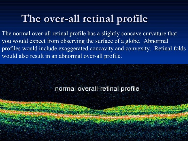 The over-all retinal profile The normal over-all retinal profile has a slightly concave curvature that you would expect fr...