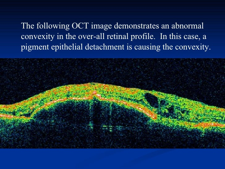 The following OCT image demonstrates an abnormal convexity in the over-all retinal profile. In this case, a pigment epith...