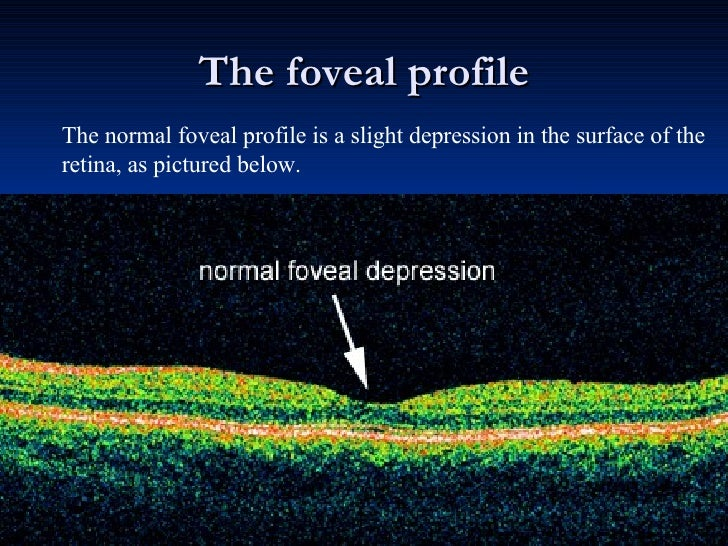 The foveal profile The normal foveal profile is a slight depression in the surface of the retina, as pictured below.
