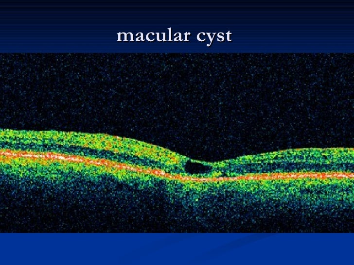 macular cyst