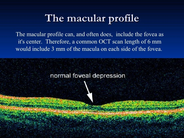 The macular profile   ...