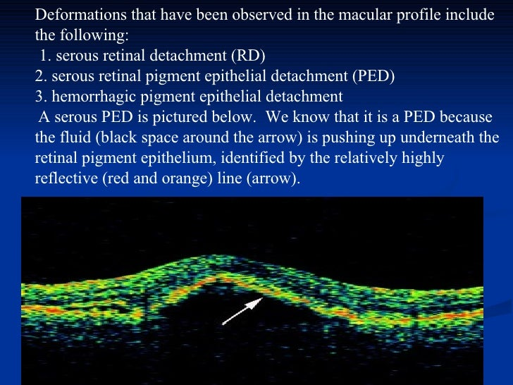Deformations that have been observed in the macular profile include the following:  1. serous retinal detachment (RD) 2. ...