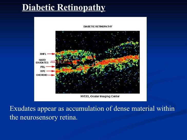 Diabetic Retinopathy Exudates appear as accumulation of dense material within the neurosensory retina.