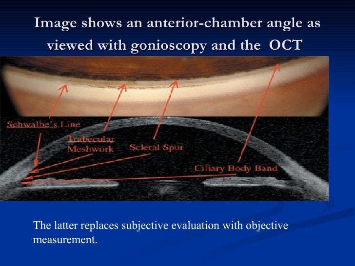 Image shows an anterior-chamber angle as viewed with gonioscopy and the  OCT   The latter replaces subjective evaluation w...