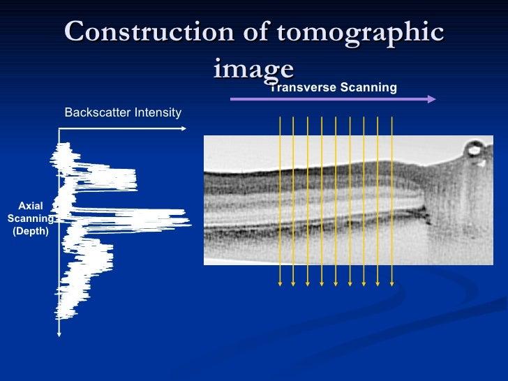 Construction of tomographic image Transverse Scanning Backscatter Intensity Axial Scanning (Depth)