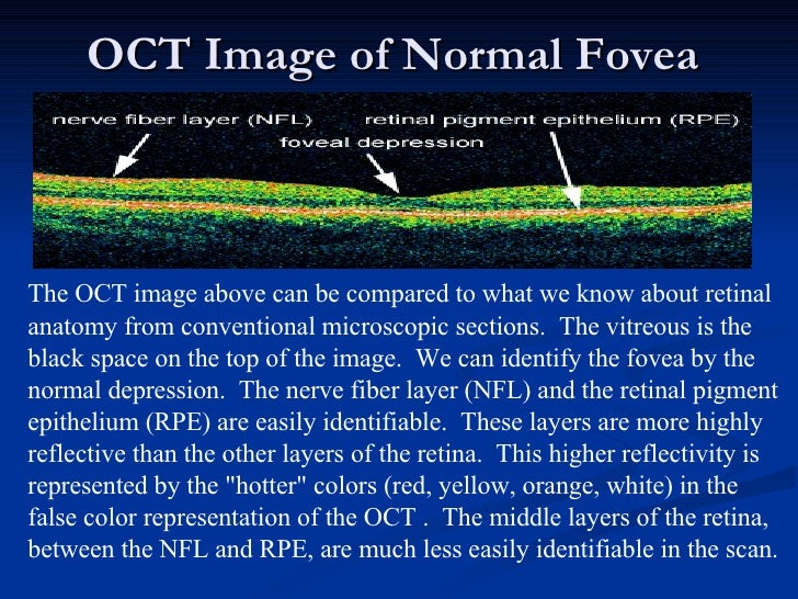 OCT Image of Normal Fovea  The OCT image above can be compared to what we know about retinal anatomy from conventional mic...