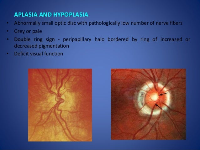 Optic Disc Hypoplasia Double Ring Sign