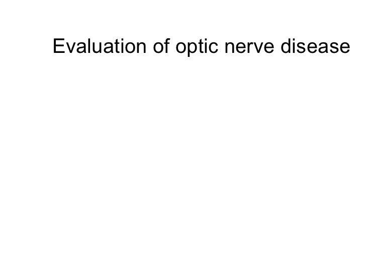Evaluation of optic nerve disease