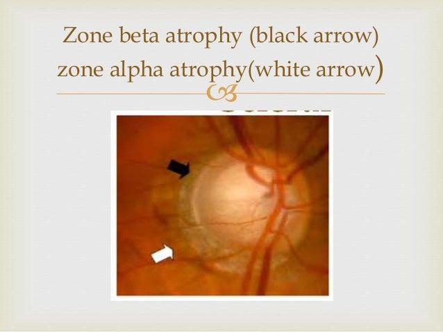 Alpha black vs beta white 9