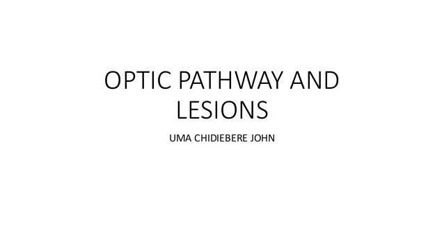 OPTIC PATHWAY AND LESIONS UMA CHIDIEBERE JOHN