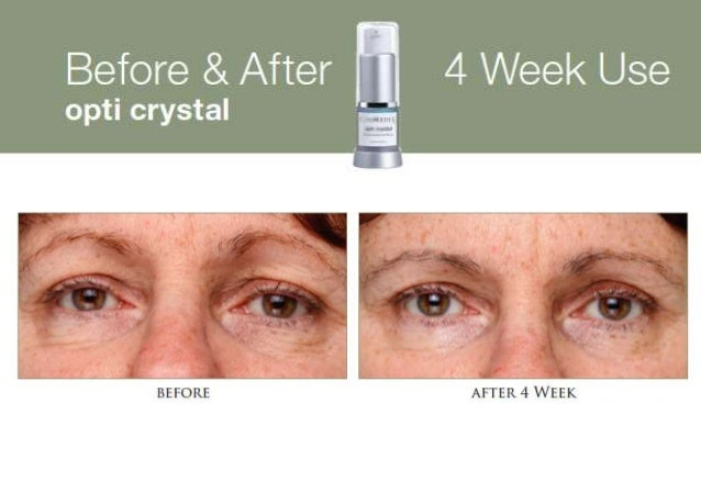 CosMedix Opti Crystal Before and After Results