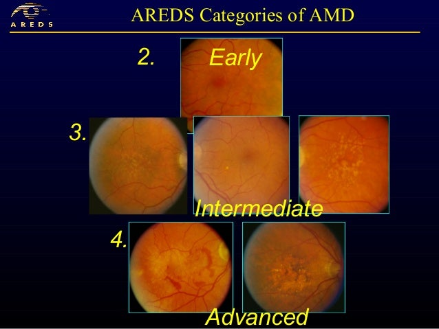 Dry AMD and GA: The Present and Future - Medscape