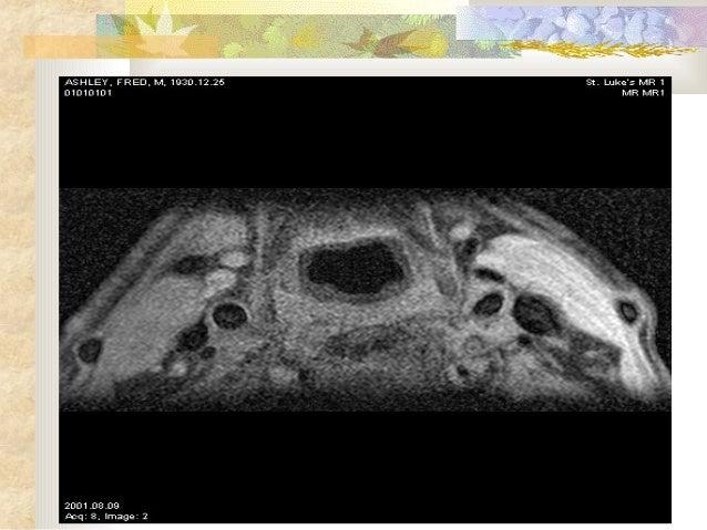 117 mr images of human carotid arteries