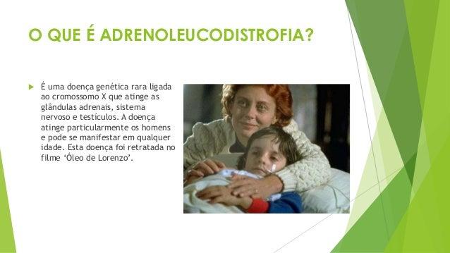 O QUE É ADRENOLEUCODISTROFIA?  É uma doença genética rara ligada ao cromossomo X que atinge as glândulas adrenais, sistem...