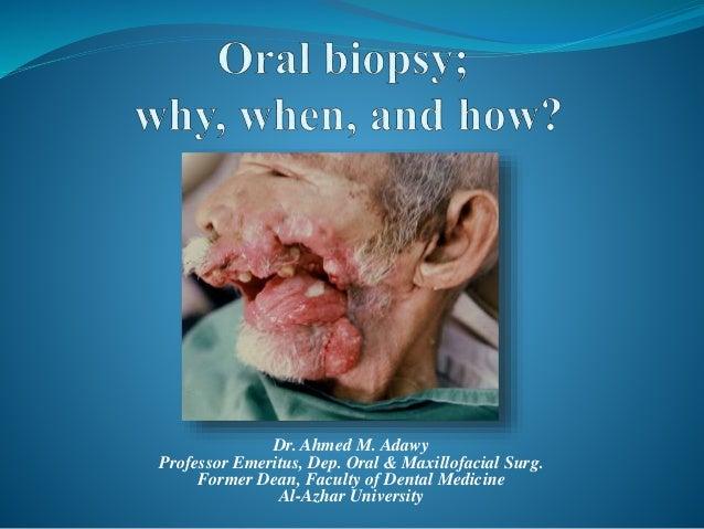 oral biopsy