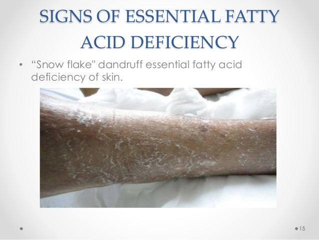 Oral and Cutaneous Signs of Vitamin, Zinc and Fatty Acid Deficiency