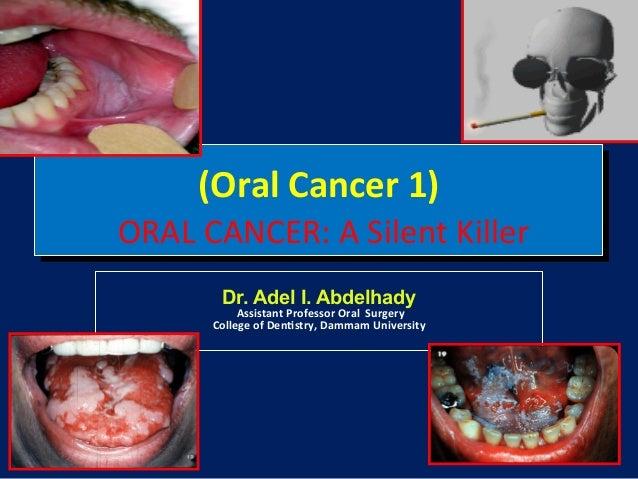 (Oral!Cancer!1)!  !ORAL!CANCER:!A!Silent!Killer! Dr. Adel I. Abdelhady  !Assistant!Professor!Oral!!Surgery! College!of!Den...