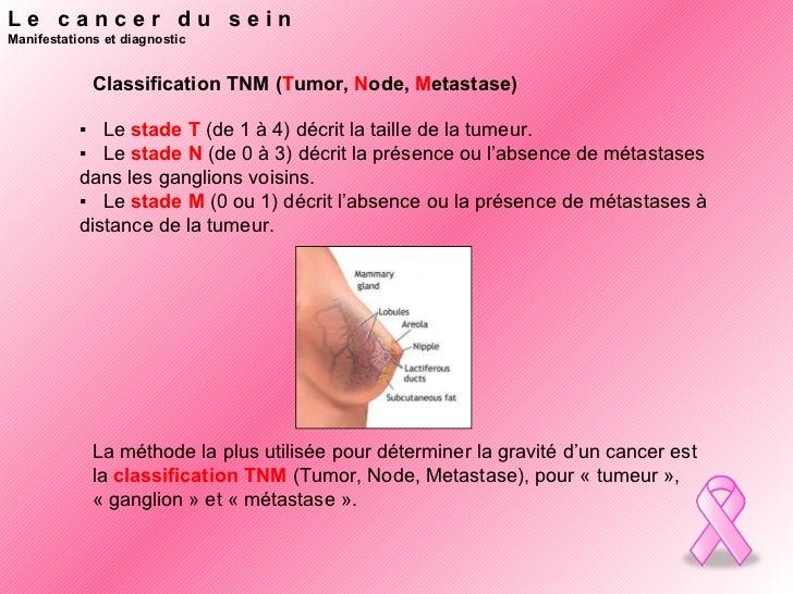 debut du cancer du sein