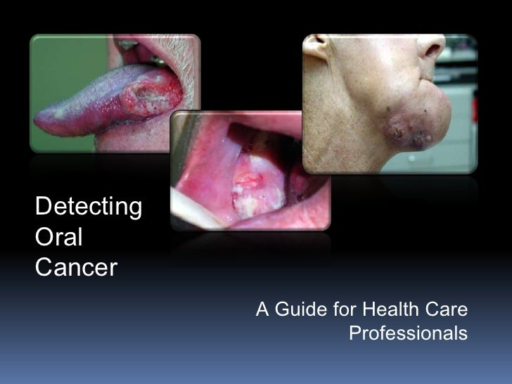 Detecting Oral Cancer             A Guide for Health Care                       Professionals