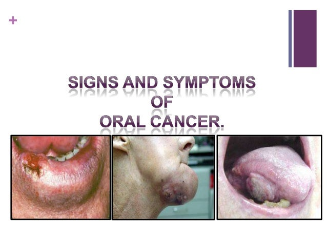 Oral cancer presentation for Floor of mouth cancer