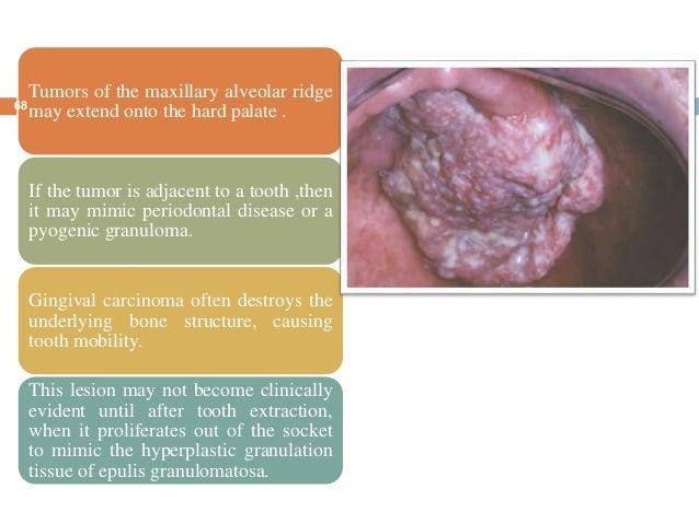 Oral cancer seminar  Oral cancer sem...