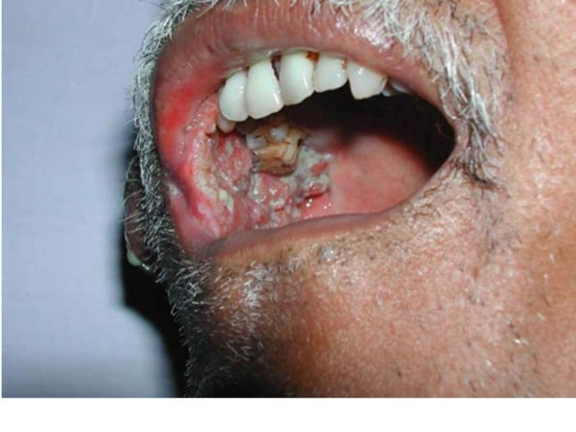 Oral cavity cancer Early Oral Cancer On Tongue