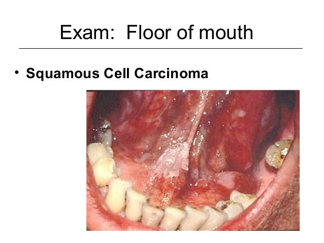 Oral cavity oropharynx for Floor of mouth cancer