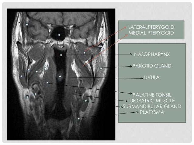 Buccinator m. Hard palate Masseter muscle Lateral & medial pterygoid m. Nasopharynx Longus capitis muscle