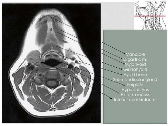 SUBMANDIBULAR SPACE Fascial-lined space inferolateral to mylohyoid muscle containing submandibular gland, nodes and anteri...