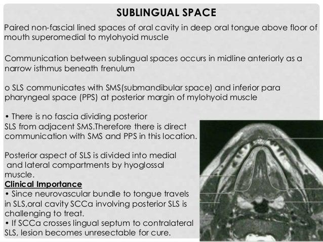 RETROMOLAR TRIGONE Triangle-shaped area of mucosa posterior to last mandibular molar that covers anterior surface of lower...