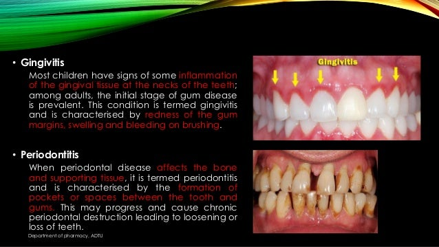 Common disease of oral cavity