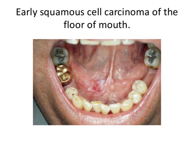 Oral epithelial tumor for Floor of mouth cancer