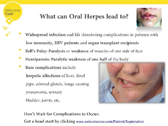 herpes disease essay Enter the sopt essay competition  however, these disease patterns are not  discreet, with encephalitis often due to the extension of  hsv cns infection can  be difficult to diagnose by examination of cerebral spinal fluid (csf), because the .