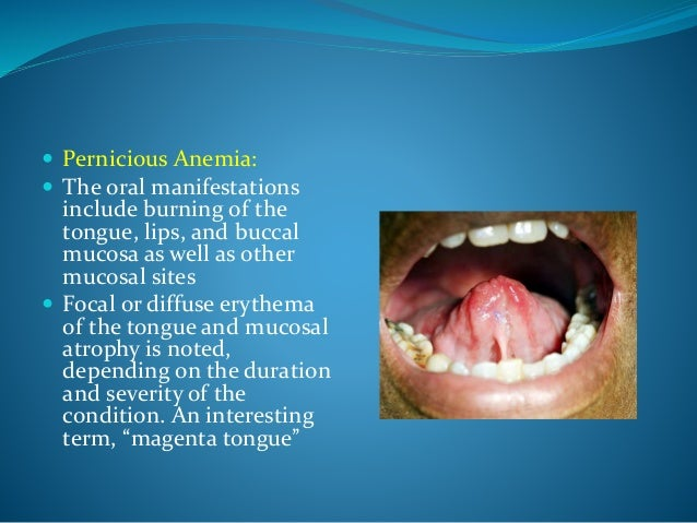 oral manifestations in systemic diseases