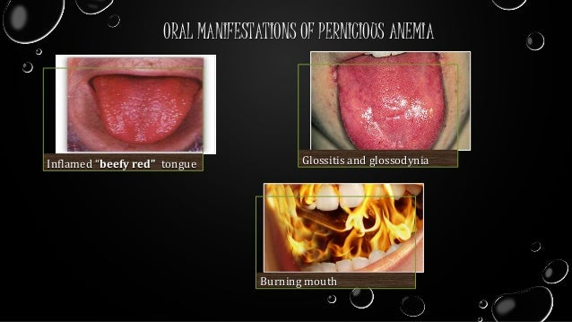 Oral manifestations of gastrointestinal disorders.ppt