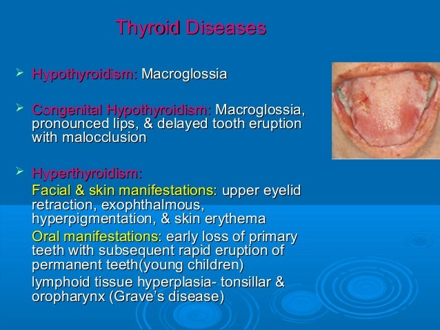 hypothyroidism essay Free thyroid cancer papers, essays, and research papers.