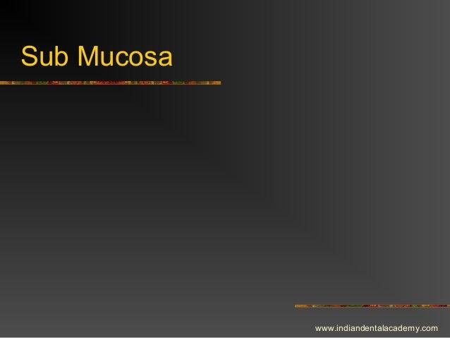 Sub Mucosa www.indiandentalacademy.com