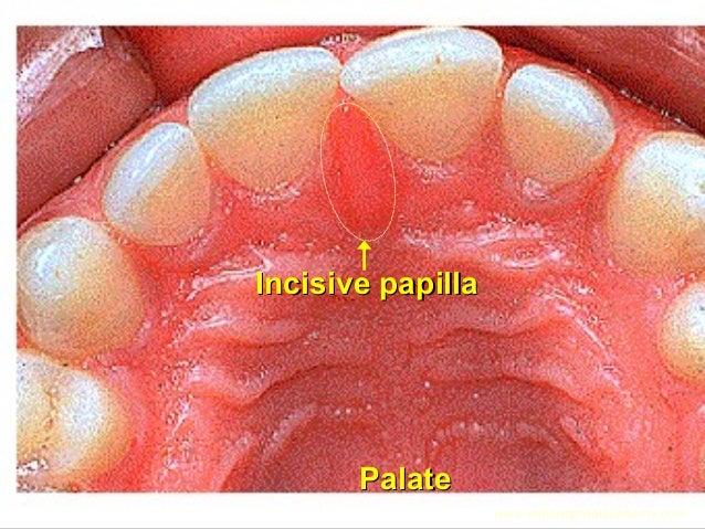 PalatePalate Incisive papillaIncisive papilla www.indiandentalacademy.com