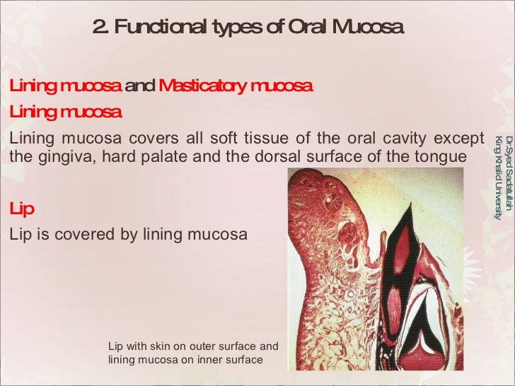 2. Functional types of Oral Mucosa Lining mucosa  and  Masticatory mucosa  Lining mucosa Lining mucosa covers all soft tis...