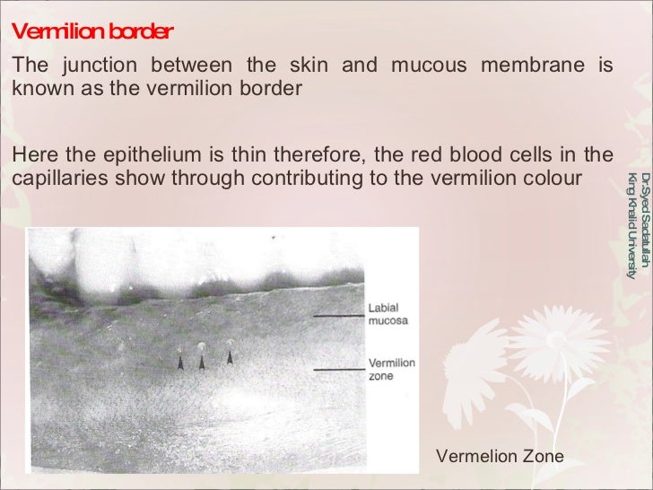 Vermilion border The junction between the skin and mucous membrane is known as the vermilion border Here the epithelium is...