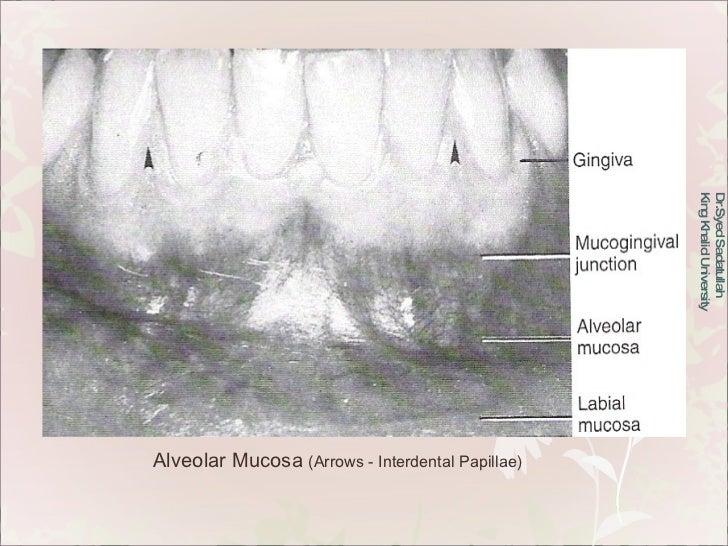 Dr.Syed Sadatullah  King Khalid University  Alveolar Mucosa  (Arrows - Interdental Papillae)