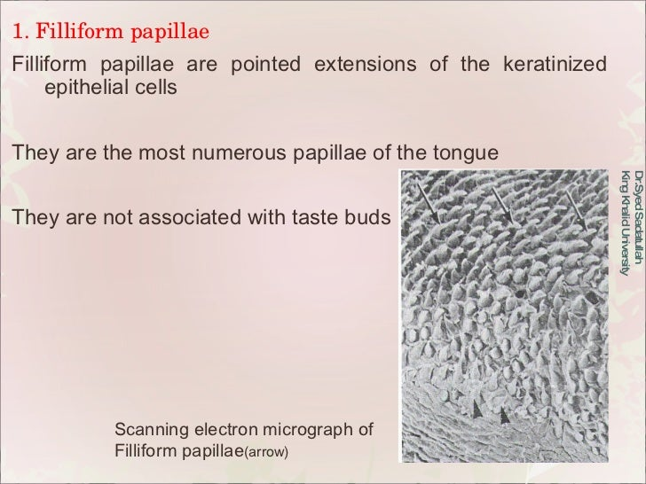 1. Filliform papillae Filliform papillae are pointed extensions of the keratinized epithelial cells They are the most nume...