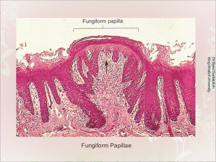 Dr.Syed Sadatullah  King Khalid University  Fungiform Papillae