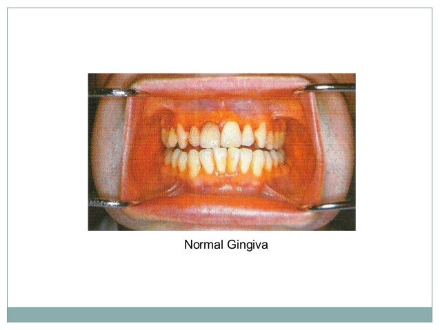 Development of gingiva from oral epithelium and reduced enamel epithelium