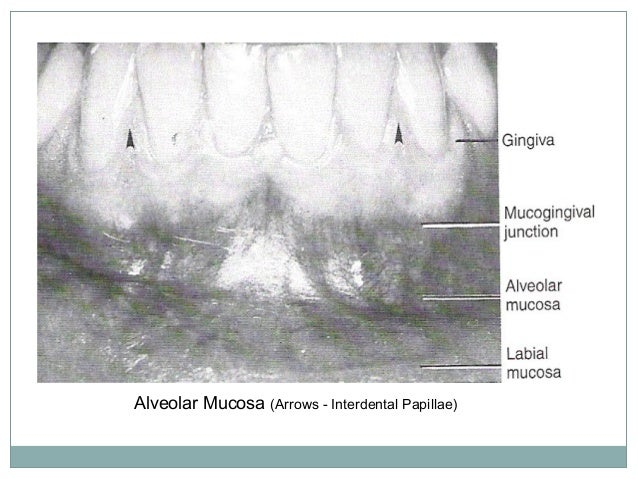 Attached gingiva The attached gingiva lies between the free gingival groove and the alveolar mucosa The junction of the at...
