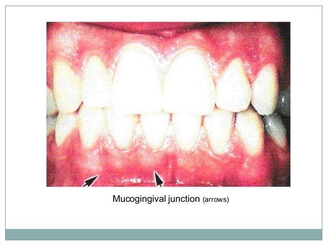 Alveolar Mucosa