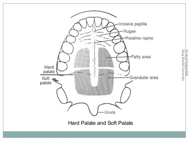 3 Mucosa of the Tongue Specialized mucosa covers the dorsal surface of the body of the tongue The connective tissue binds ...