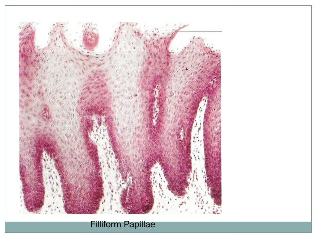 2. Fungiform papillae Fungiform papillae are fewer than the filliform papillae and are scattered over thedorsal surfaceof ...